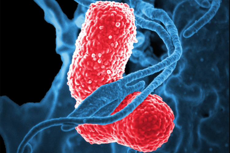 Klebsiella pneumoniae - Wikipedia