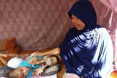 Ketegaran Husniati, Ibunda Kembar Siam Anaya-Inaya: Saya Ingin Menggendong Mereka Sepuasnya
