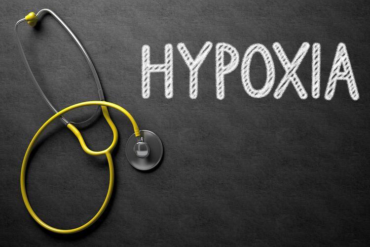 Ilustrasi Happy hypoxia adalah kondisi menurunnya kadar oksigen dalam darah, namun tidak disertai gejala atau keluhan pada pasien. Banyak terjadi pada pasien Covid-19 dan menyebabkan kematian.