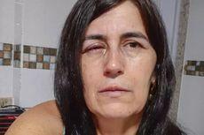 Pacarnya Tak Bisa Bedakan Lem Super dan Obat Tetes Mata, Wanita Ini Matanya Dilem