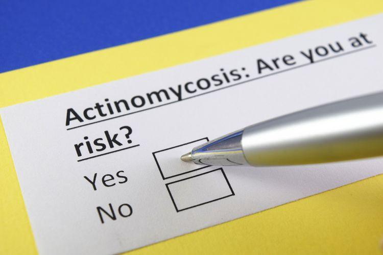 Ilustrasi Aktinomikosis
