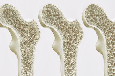 20 Oktober 1996: Hari Osteoporosis Sedunia Pertama Kali Diperingati
