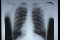Hipertensi Juga Terjadi pada Paru-paru