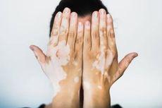 Waspada Vitiligo, Kelainan Pigmen Warna pada Kulit