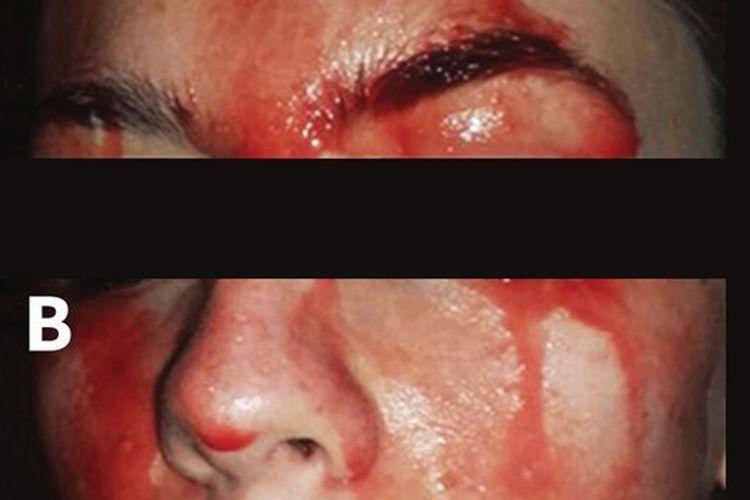 Seorang wanita yang mengalami hematohidrosis atau berkeringat darah dalam sebuah gambar dari Canadian Medical Association Journal.