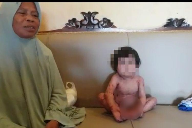 Jateun (55) mendampingi cucunya Sifa Nurjanah (3), balita di Tegal Jawa Tengah yang mengalami luka kulit melepuh hampir di sekujur tubuhnya, yang tinggal di  RT 02, RW 05, Desa Bongkok, Kecamatan Kramat, Kabupaten Tegal, Jawa Tengah, Selasa (6/7/2021).