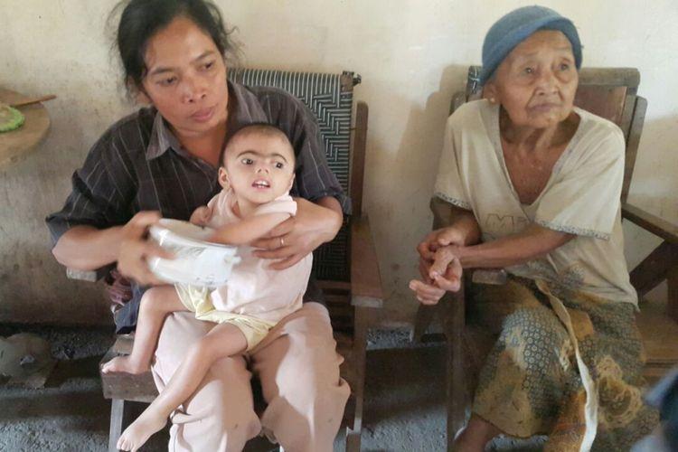 Nampak Parsinem menggendong Ahmad Rifki Ariwikri yang terkena CDLS komplikasi jantung bocor dan hernia di kediamannya di Desa Tulung, Kecamatan Saradan, Kabupaten Madiun, Jawa Timur, Jumat ( 20 / 10 / 2017)