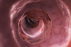 4 Gejala Tumor Usus Besar yang Perlu Diwaspadai