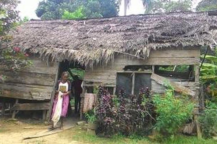 Fatimah, wanita renta berada di  rumahnya Desa Paya Demam Sa, Kecamatan Pante Bidari, Aceh Timur, Sabtu (26/9/2015). Dia tinggal bersama tiga cucunya di rumah kayu yang sudah penuh lubang dan nyaris rubuh.
