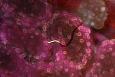 Rahasia Mematikan Malaria Terungkap, Bisa Jadi Jalan untuk Vaksin Baru