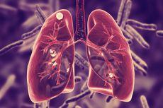 6 Kebiasaan Sehat untuk Cegah Tuberkulosis