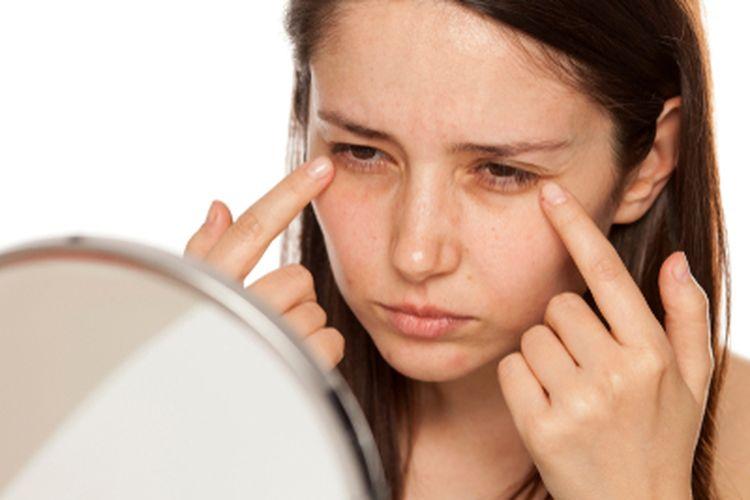 Tanda-tanda penuaan sering kali muncul pertama kali di area bawah mata.