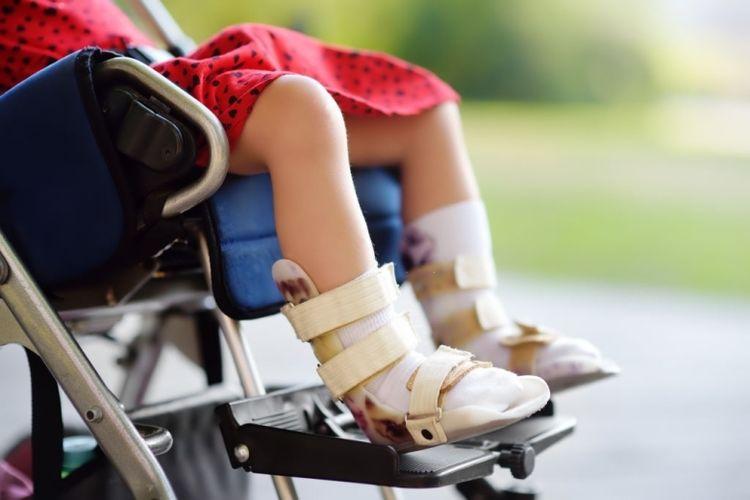 Ilustrasi anak cerebral palsy dengan gangguan tulang.