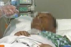 Gara-gara Pencet Jerawat di Dagu Pria Ini Kritis dan Dirawat di ICU Sebulan