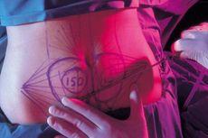 Mengenal Liposuction, Metode Sedot Lemak demi Bentuk Tubuh Ideal