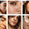 5 Beauty Influencer Tunjukkan Cara Cintai Kulit Meski Tak Sempurna