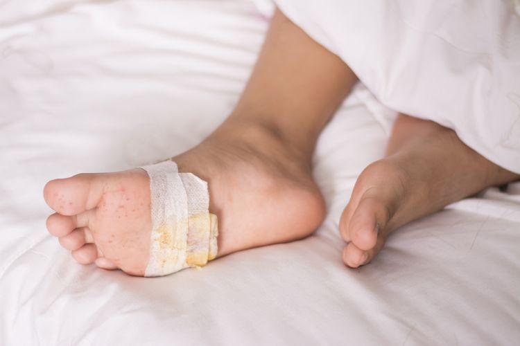 Ilustrasi luka diabetes di kaki