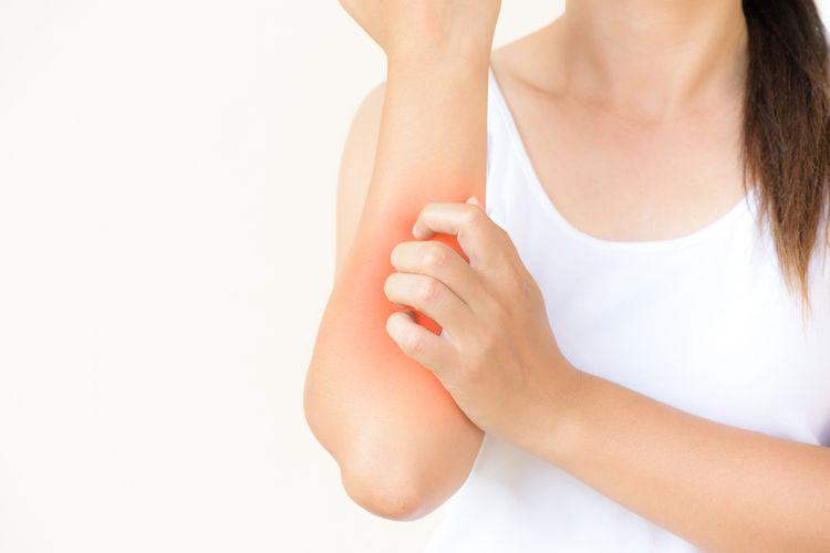 Ilustrasi alergi, alergi sentuhan, dermatographia