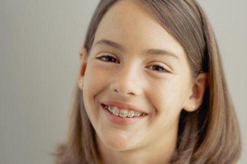 4 Tips Seputar Penggunaan Kawat Gigi ala Pakar UGM