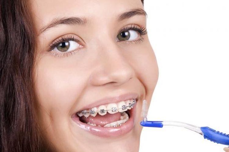 Ilustrasi perawatan gigi.