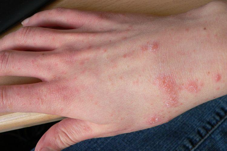 Ilustrasi skabies, penyakit kudis, penyakit kulit.
