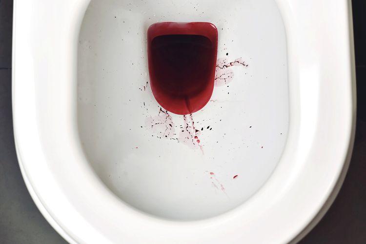 Ilustrasi urine berdarah