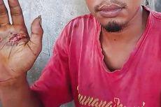 Pria Ini Dihukum Pegang Besi Panas karena Tuduhan Bersetubuh dengan Seorang Wanita