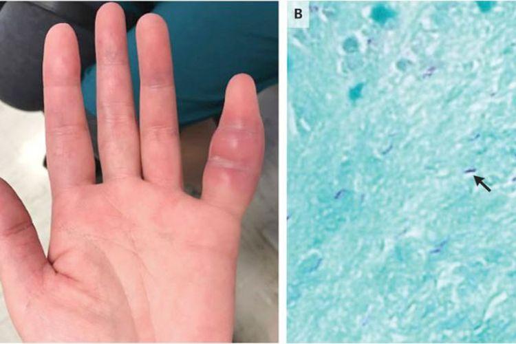 Jari kelingking yang bengkak ini merupakan tanda infeksi tuberkulosis yang langka. Panah pada gambar B menunjuk bakteri tuberkulosis.