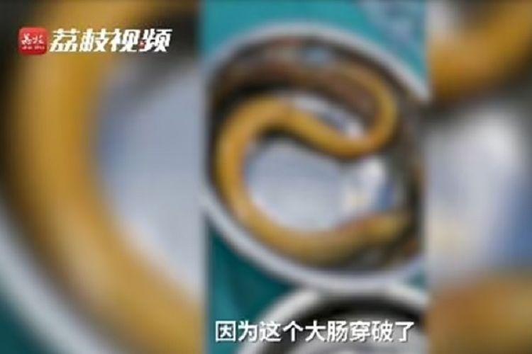Potongan video yang diunggah media China Global Times menunjukkan seekor belut yang diangkat dari perut seorang pria. Lelaki itu hampir mati karena memasukkan belut ke anus untuk meredakan sembelit.