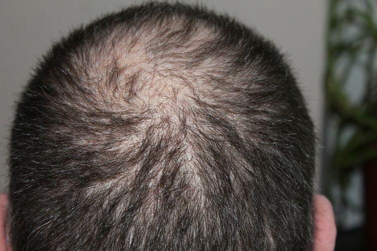 Ilustrasi rambut menipis yang memicu kebotakan.