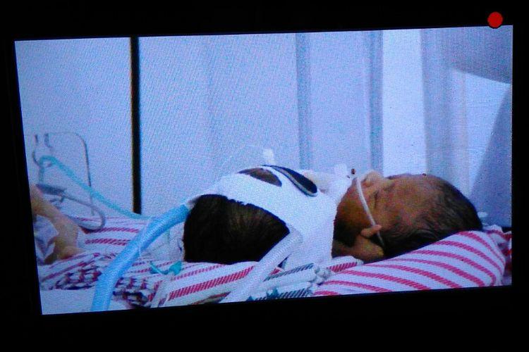 Bayi kembar siam dengan dua kepala satu tubuh dirawat di ruang NICU, RSUD Provinsi NTB.
