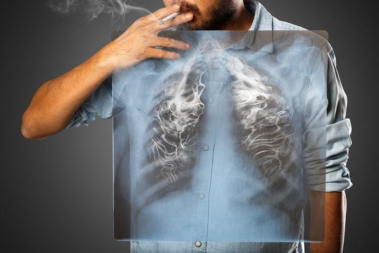 Ilustrasi bahaya asap rokok. Penyebab utama kanker paru dan kematian di Indonesia.