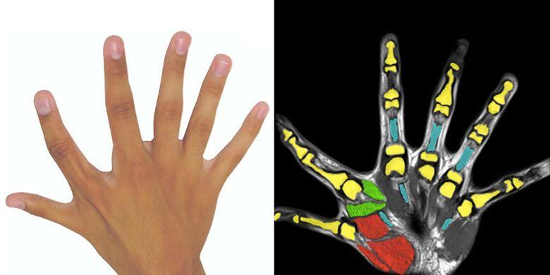 Hasil pindaian tangan pengidap polidaktili yang menunjukkan bahwa jari ekstra digerakkan oleh otot tersendiri