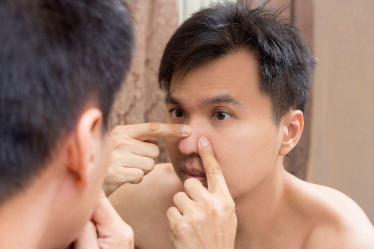 Ciri Ciri Jerawat Terinfeksi Plus Cara Mengatasinya