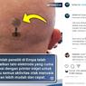 Benarkah Tato Elektroda Bisa Pantau Aktivitas Otak?