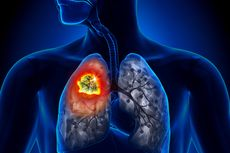 5 Penyebab Kanker Paru-paru, Tak Hanya Rokok