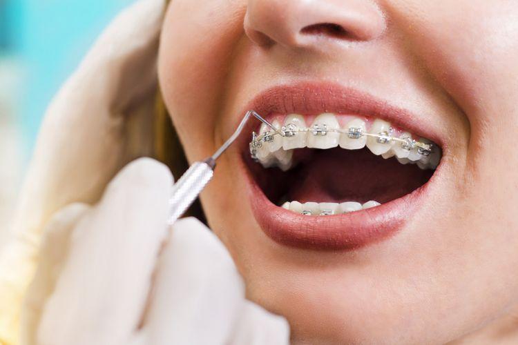 Ilustrasi perawatan kawat gigi