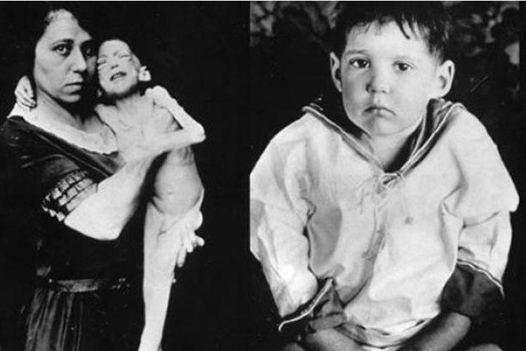 Leonard Thompson sebelum dan sesudah mendapatkan suntikan insulin