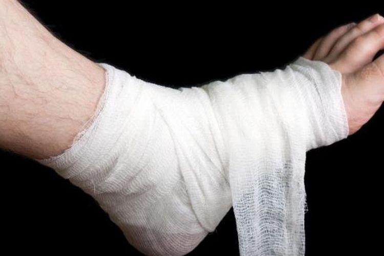 Ilustrasi luka pada kaki