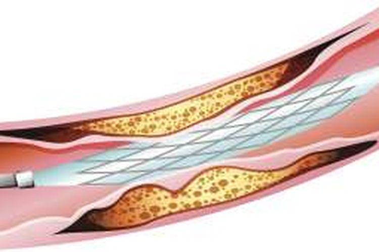 Pemasangan Ring Jantung Yang Aman Untuk Pasien Diabetes