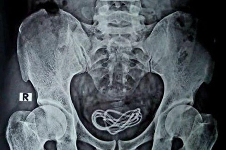 Hasil pemeriksaan rontgen kabel charger di kantung kemih seorang pria di India.