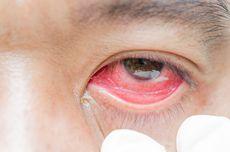 Peneliti: Mata Merah Bisa Jadi Gejala Covid-19, Waspadai Penularannya Melalui Air Mata