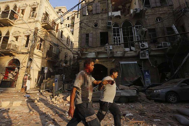 Seorang pria yang terluka dibantu saat berjalan melewati puing-puing di distrik Gemmayzeh, Beirut, Lebanon, usai terjadinya ledakan susulan, Selasa (4/8/2020). Sebanyak 73 orang tewas dan ribuan lainnya dilaporkan terluka dari insiden dua ledakan besar yang mengguncang Beirut tersebut.