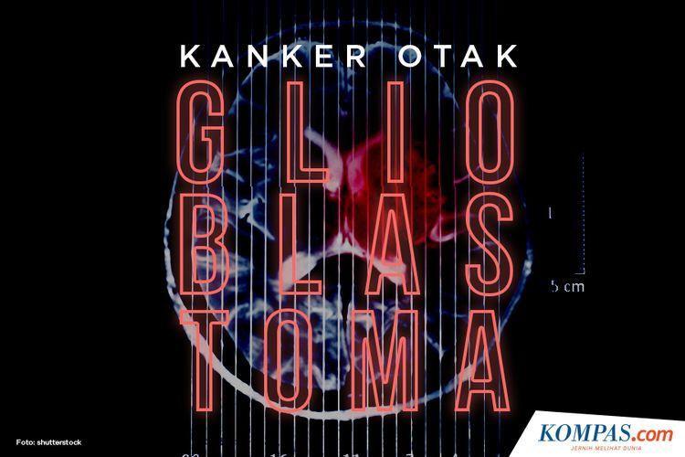 Kanker Otak Glioblastoma