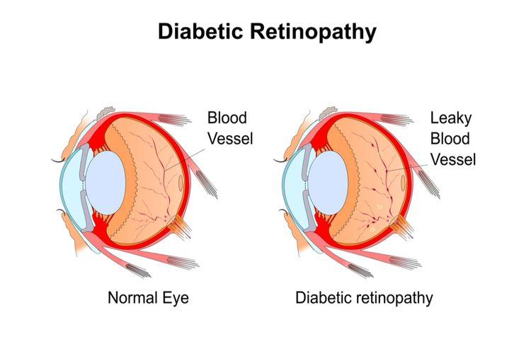 ilustrasi retinopati diabetik