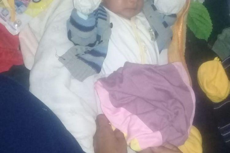 Foto : Kristina Grimonia Dobe, seorang bayi asal Kampung Solo, Desa Rowa, Kecamatan Boawae, Kabupaten Nagekeo, NTT, terlahir tanpa anus.