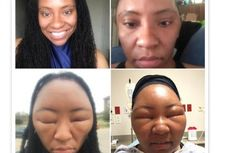 Hati-hati, Wajah Bisa Bengkak karena Pewarna Rambut Henna