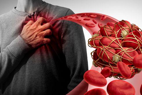 Cara Mengenali Kondisi Kesehatan Jantung Sendiri, Sudah Tahu?