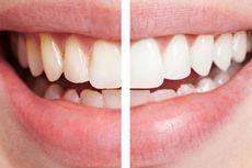 3 Cara Memutihkan Gigi Secara Alami