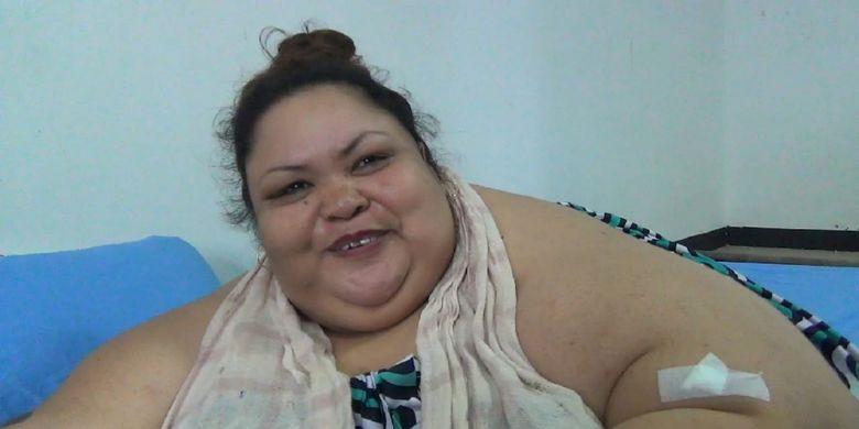 Wajah Titin, penderita obesitas 300 kg, terlihat mulai bisa tersenyum saat sudah berada diruang rawat inap rumah sakit di Palangkaraya, Jumat (11/1/2019).